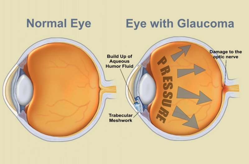 lumigan for glaucoma